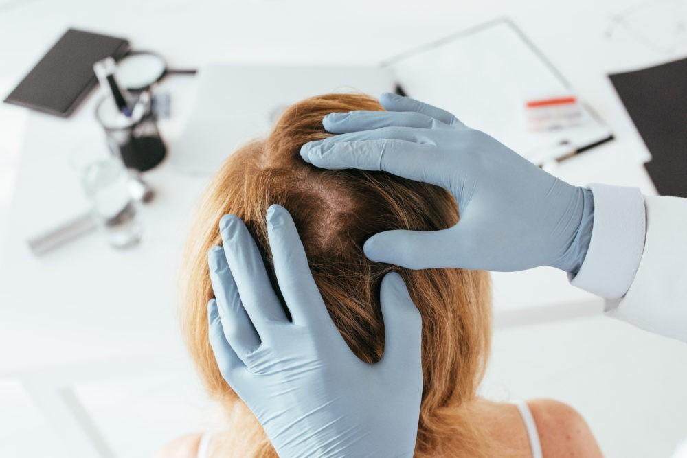 фото маски для волос от перхоти