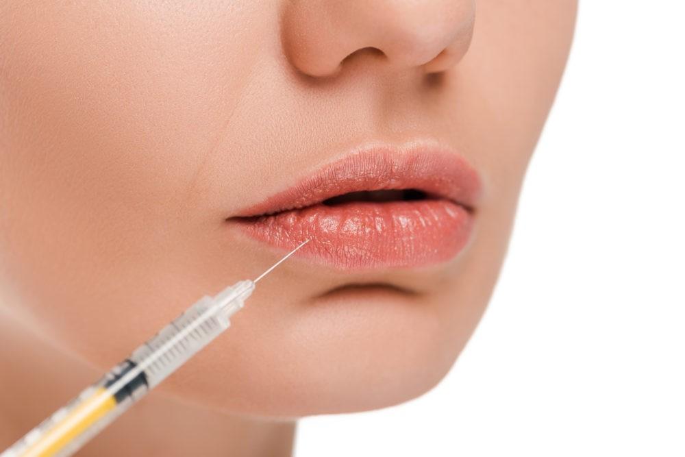 Инъекции ботокса в губы: зачем делают и как это происходит